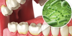 Harmful bacteria around the gum line